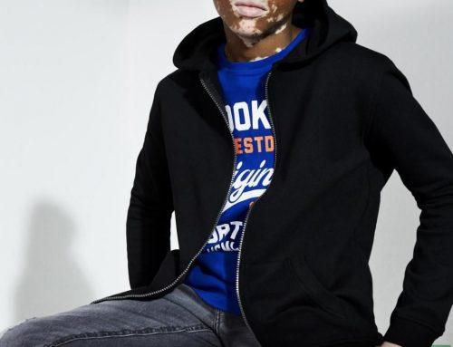 Vitiligós kamasz fiú lett a Primark reklámarca