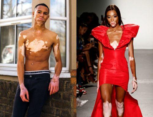 Ma van a vitiligó világnapja!