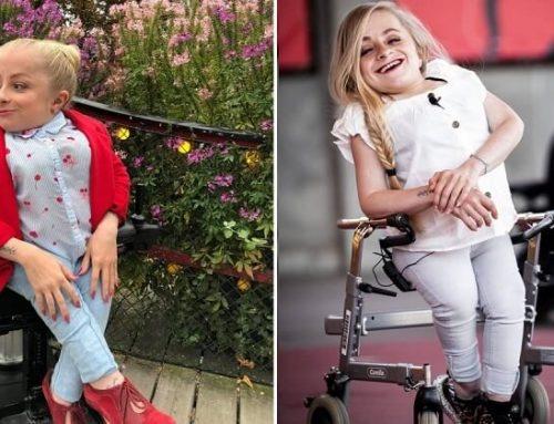 A modellkedés segített helyreállítani az önbizalmát az üvegcsont-betegséggel született nőnek